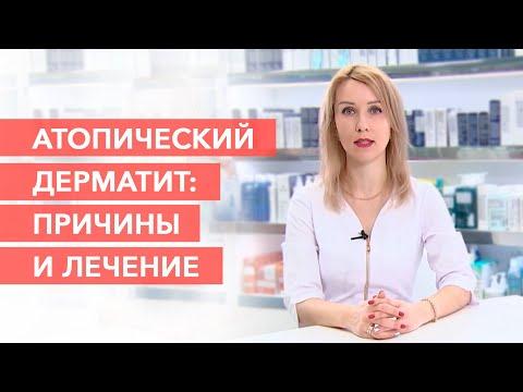 Причины и лечение атопического дерматита. Атопический дерматит у детей