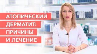Причины и лечение атопического дерматита Атопический дерматит у детей
