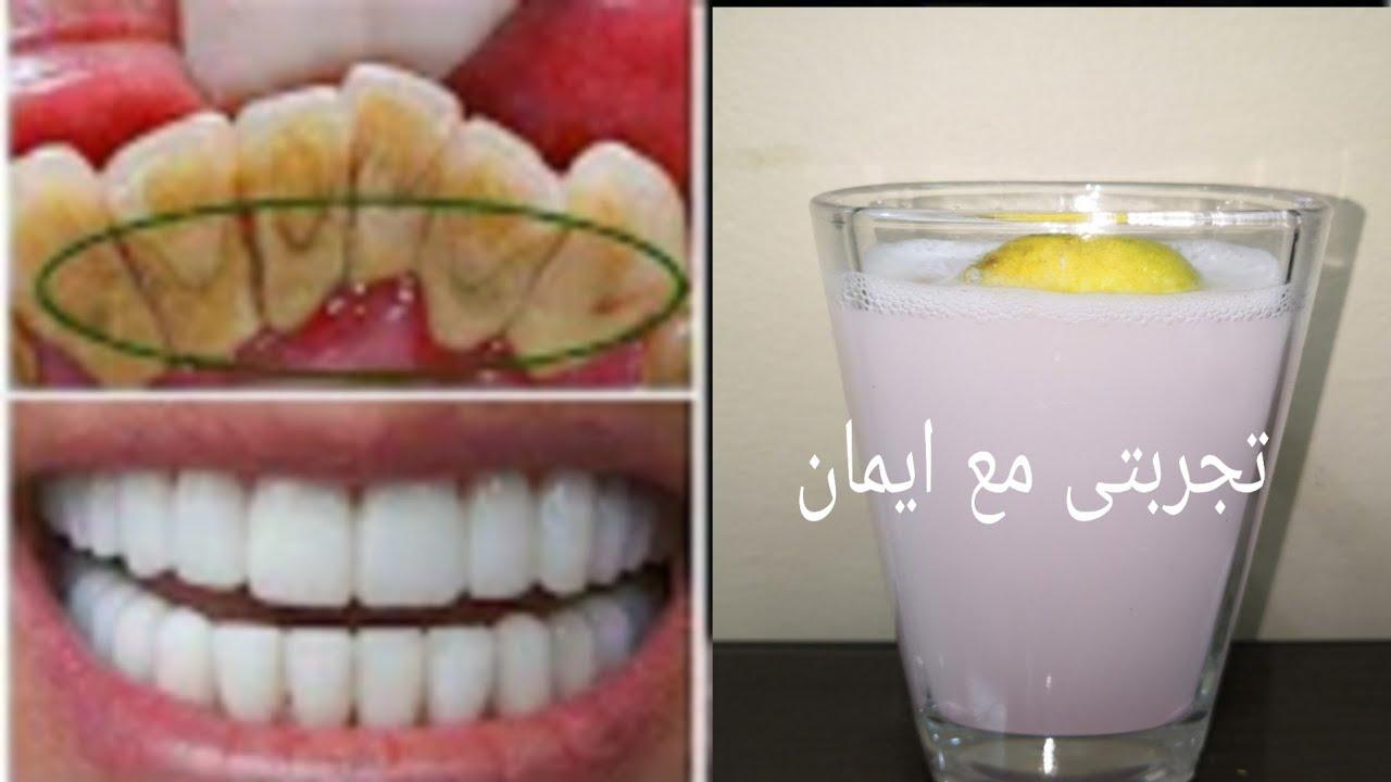 أقسم بالله لن تلجأ لطبيب الأسنان لتبييض الأسنان و لإزالة الجير سيسقط وحده بعد المضمضة بهدا المحلول Youtube