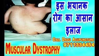 Muscular Dystrophy, Symptoms, types, causes and Treatment by Acupuncture, Dr Gnaga Dadu