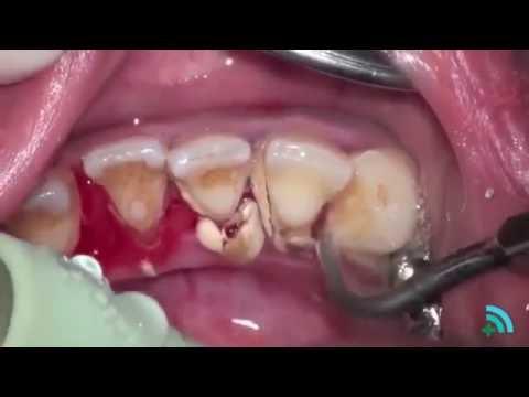 Удаление зубного камня с помощью ультразвука (Removing dental plaque)