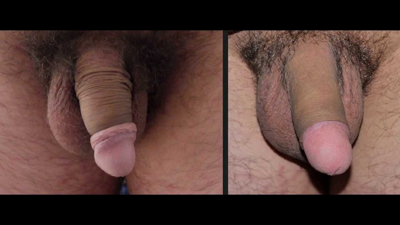 super-tight-circumcision