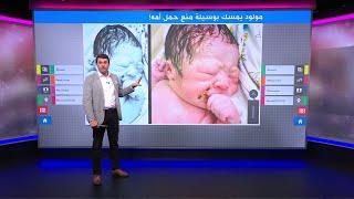 مولود يخرج من بطن أمه ممسكا بأداة منع الحمل