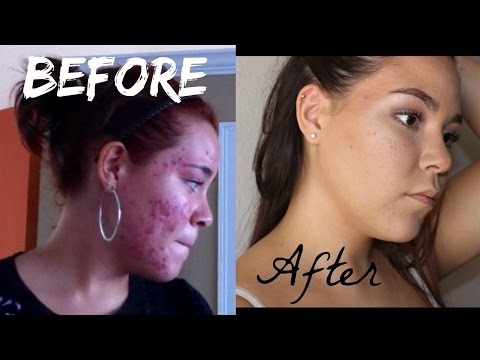 Miracle Products- How to get rid of acne and acne scars!