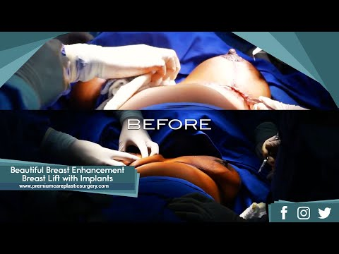 Beautiful Breast Enhancement - Breast Lift with Implants