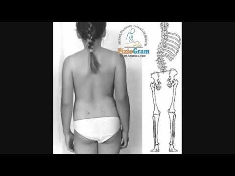 dureri articulare după bonvivă îmbinare umflată la braț