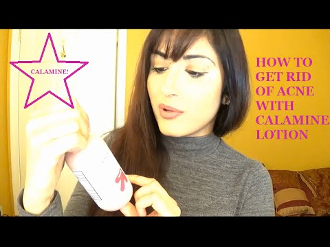 How To Get Rid Of Acne With Calamine Lotion