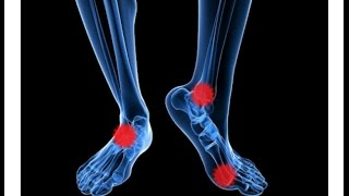 Do you suffer from cold feet? No More! Healing Socks is a solution ...