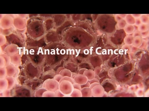 What is cancer? (2013)