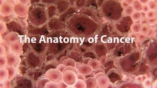 What is cancer? What causes cancer and how is it treated