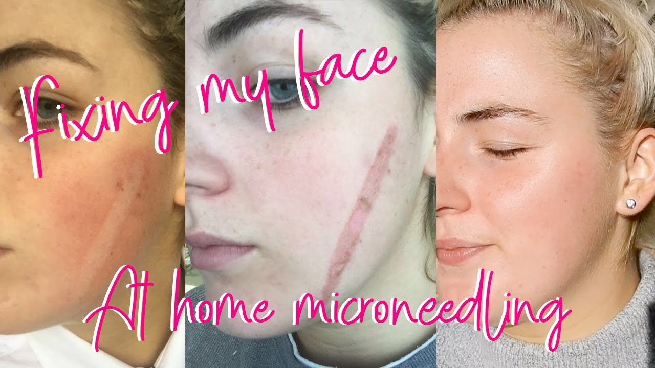 Getting rid of my scar! At home microneedling & mini facial using the Nu  Skin Galvanic Spa 2