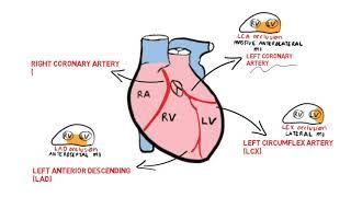 Angina Pektoris Stabil / stable angina / chronic coronary syndrome.