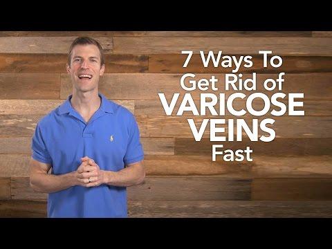 7 Ways to Get Rid of Varicose Veins Fast  Dr Josh Axe