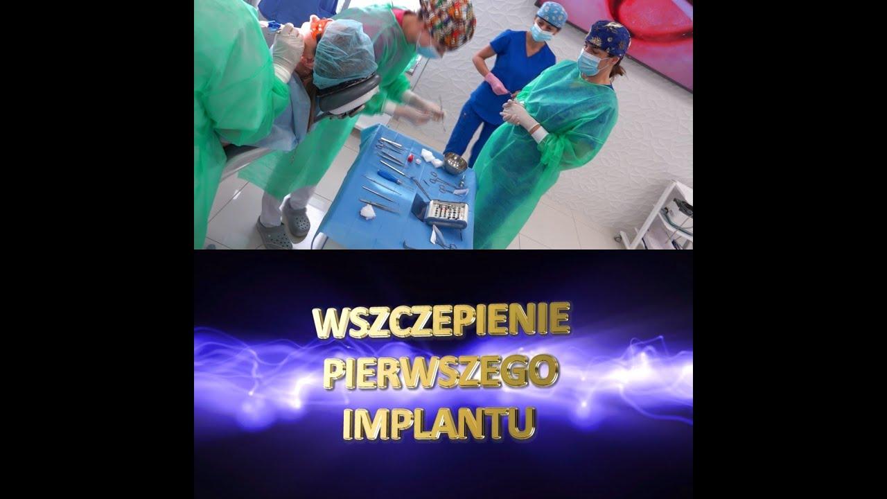 Practiculum Implantologii Sezon XB sesja 4 zabieg 3