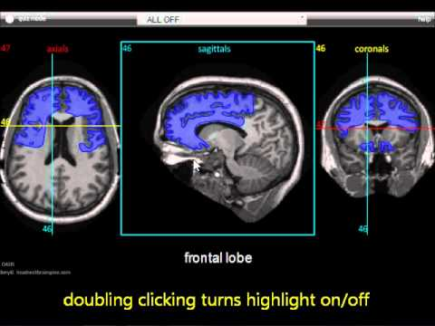 Brain MRI Anatomy Module Tutorial - touchNEUROLOGY