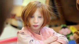 Niemand wollte sie adoptieren - 19 Jahre später sieht sie so aus!