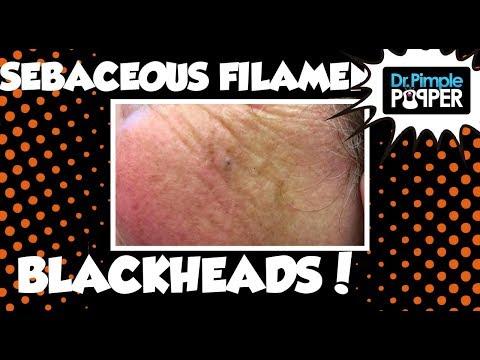 Two Women: Blackheads & Sebaceous Filaments