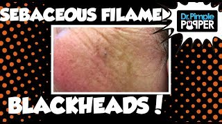 Two Women: Blackheads & Sebaceous Filaments