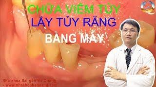 Cách Lấy tủy răng chữa sâu răng đến tủy, Điều trị tủy răng không đặt thuốc diệt tủy