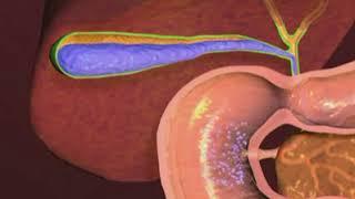 Ablation de la vésicule biliaire en vidéo