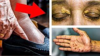 Ваше СЕРДЦЕ на ГРАНИ!!! Если есть Хоть ОДИН из ЭТИХ 10 Симптомов НА КОЖЕ ...
