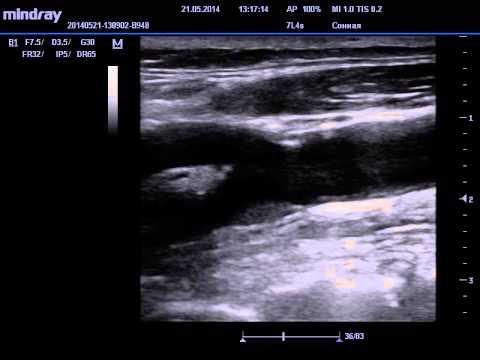 ЭКДС УЗИ сосудов шеи АС бляшки сонной артерии - YouTube