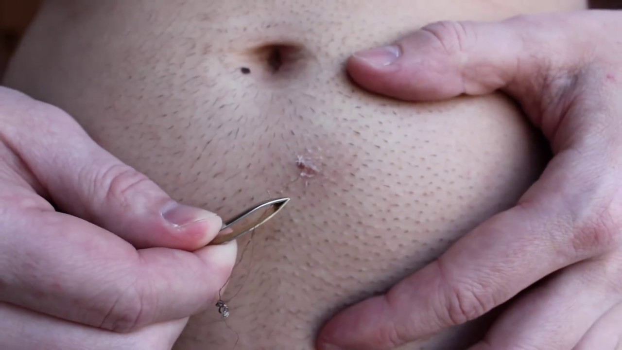 Longest Ingrown Hair Removal Below Belly Button Youtube