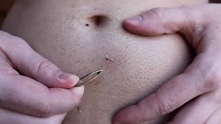 Longest ingrown hair removal below belly button