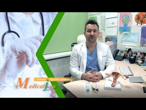 Эмболизация маточных артерий (ЭМА) для лечения миомы