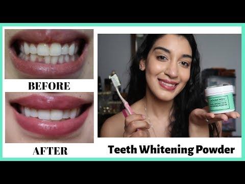 Whitening My Teeth For 7 Days Laguna Moon Teeth Whitening