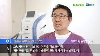 선천성 피지선 모반, 표피 모반과 피지선 증식증:유명한…
