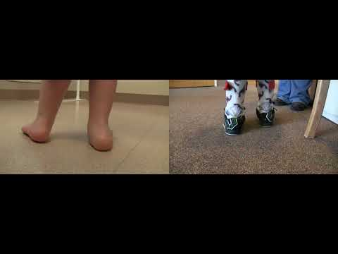 Before & After | Strong Pronation | DAFO Tami2 Free Ankle