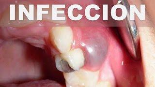 ☞ Remedios caseros para un absceso dental – Como aliviar infección en la raíz del diente