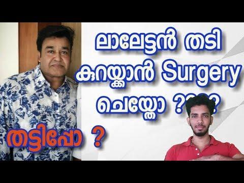 Mohanlal Exposed | Lalettan Weight Loss Revealed |എങ്ങനെ തടി കുറയ്ക്കാം ?