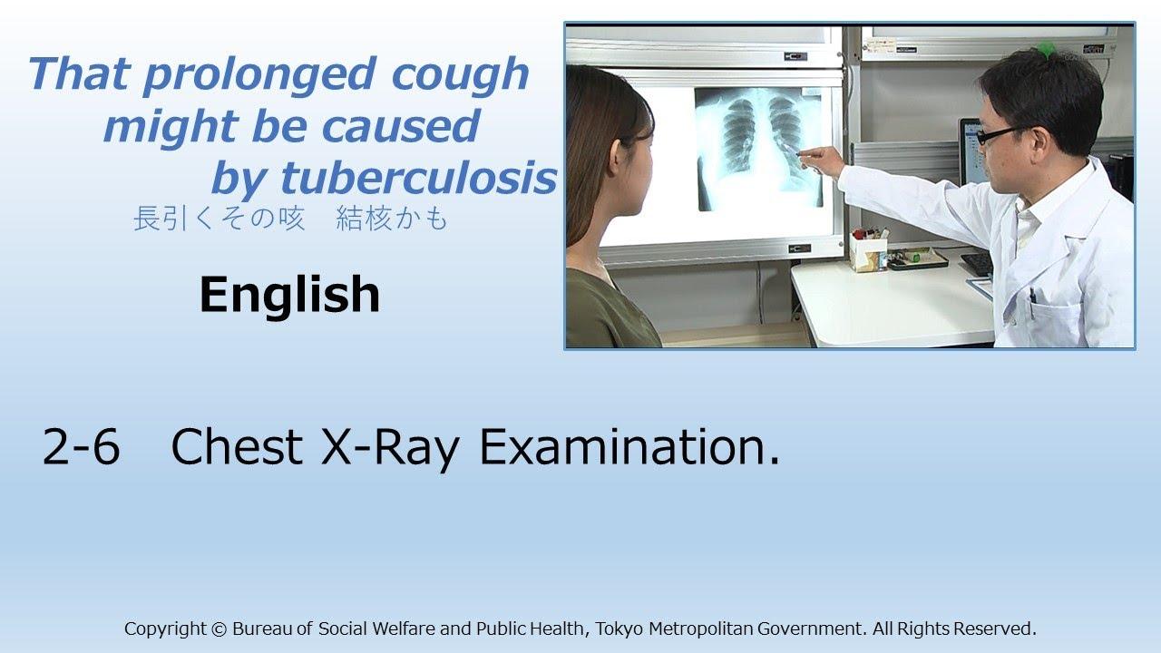 2 6 english chest x ray examination youtube