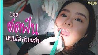 จัดฟัน ดัดฟัน ตัดฟันแบบใส ?!?!? รอบนี้มีแจก!!!
