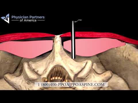 minimally-invasive-laser-discectomy