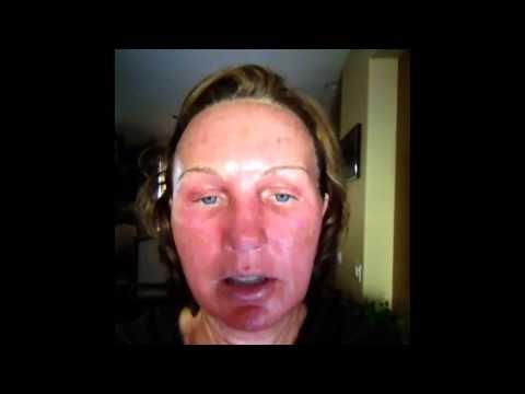Mixto CO2 Fractional Laser Resurfacing Video Diary