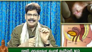 Anal Pain, Causes and Ayurveda Treatment in Telugu by Dr. Murali Manohar Chirumamilla, M.D.
