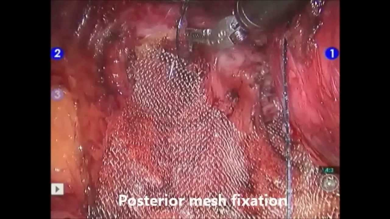 Pdf Modified Extensive Anterior Vaginal Wall Repair For Cystocoele