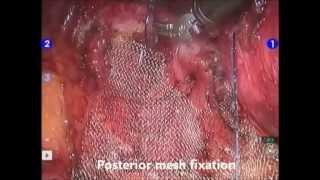Repeat youtube video Uplift - Vaginal Vault Prolapse repair by laparoscopic sacrocolpopexy