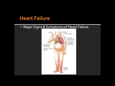 Heart Failure - Causes of Left and Right Sided Heart Failure & Signs and Symptoms