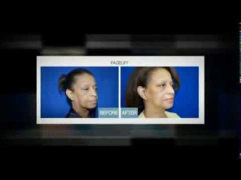 Beautiful Faces Dallas - Facelift Specialist