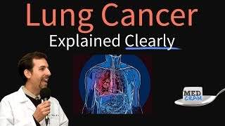 Lung cancer overview by pulmonologist roger seheult, md of http://www.medcram.com. dr. seheult illustrates the causes cancer, different types lung...