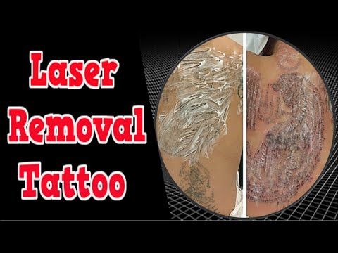 Laser Removal Tattoo, How To Remove Permanent Tattoo At Home, How To ...
