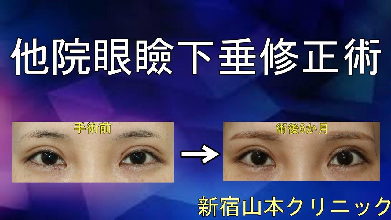 は 眼瞼 下垂 と 【まぶたのたるみ】ためしてガッテンで眼瞼下垂を紹介。メークの効果は?