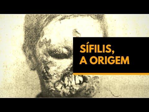 Sífilis, A Origem