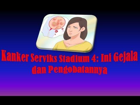 Kanker Serviks Stadium 4 Ini Gejala dan Pengobatannya ...