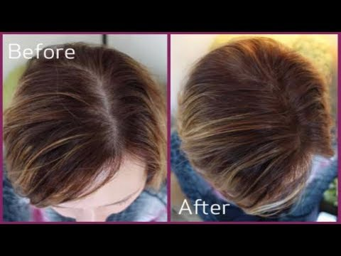 Regrows Hair Protocol Review | Baldness Cure Branded | How to Regrow Hair