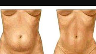 Reducir piel sobrante adelgazar barriga